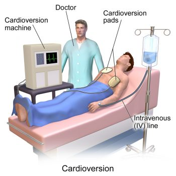cardiovascular perfusionist salary - outstanding colleges, Cephalic Vein